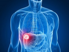 Study on Validity of Biomarkers DKK1 and HBx-LINE1 in Diagnosis and Posttreatment Monitoring of Hepatocellular Carcinoma