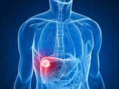 Kết quả sống thêm lâu dài của bệnh nhân ung thư biểu mô tế bào gan được điều trị bằng phương pháp tắc mạch hóa dầu và tắc mạch hóa chất sử dụng hạt vi cầu DC-Beads