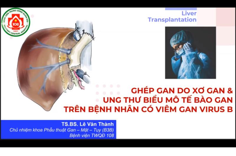 Gép gan do xơ gan và ung thư biểu mô tế bào gan trên bệnh nhân có viêm gan virut B